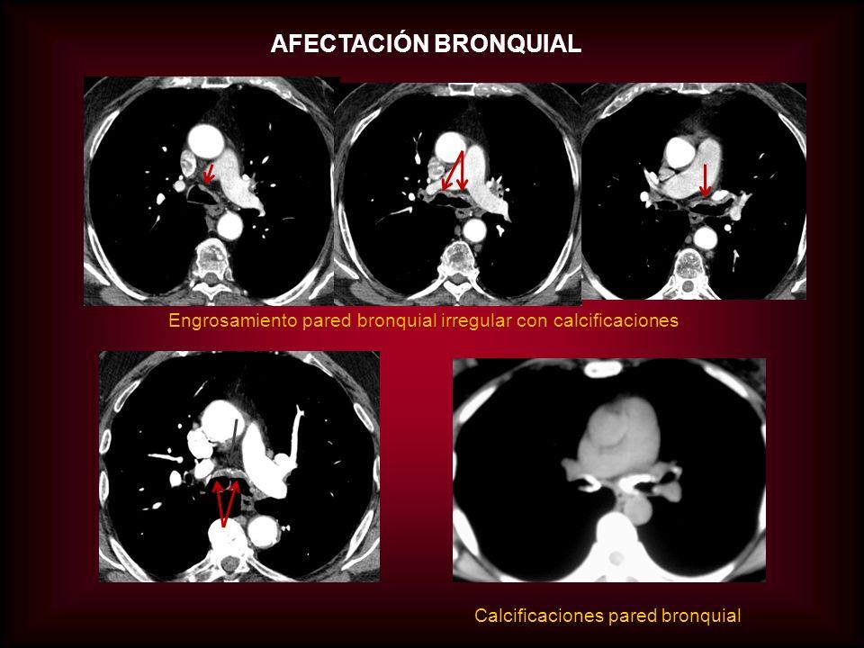 AFECTACIÓN BRONQUIAL Engrosamiento pared bronquial irregular con calcificaciones.