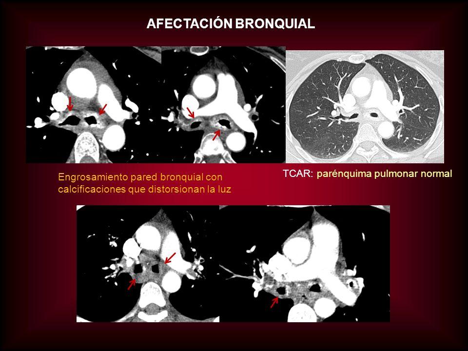 AFECTACIÓN BRONQUIAL TCAR: parénquima pulmonar normal