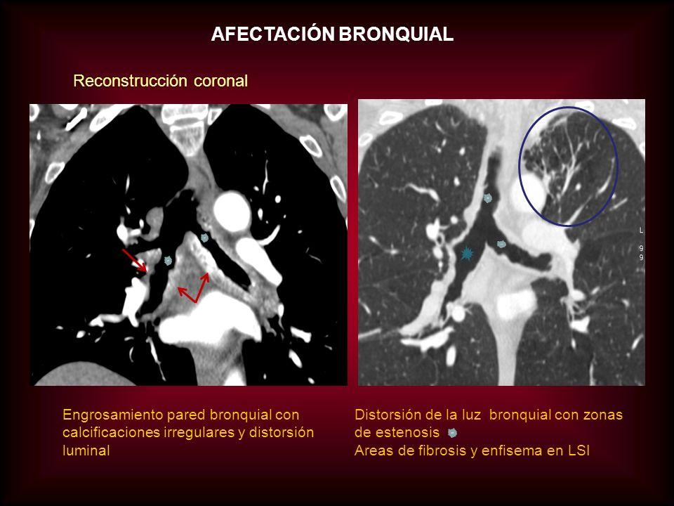 AFECTACIÓN BRONQUIAL Reconstrucción coronal