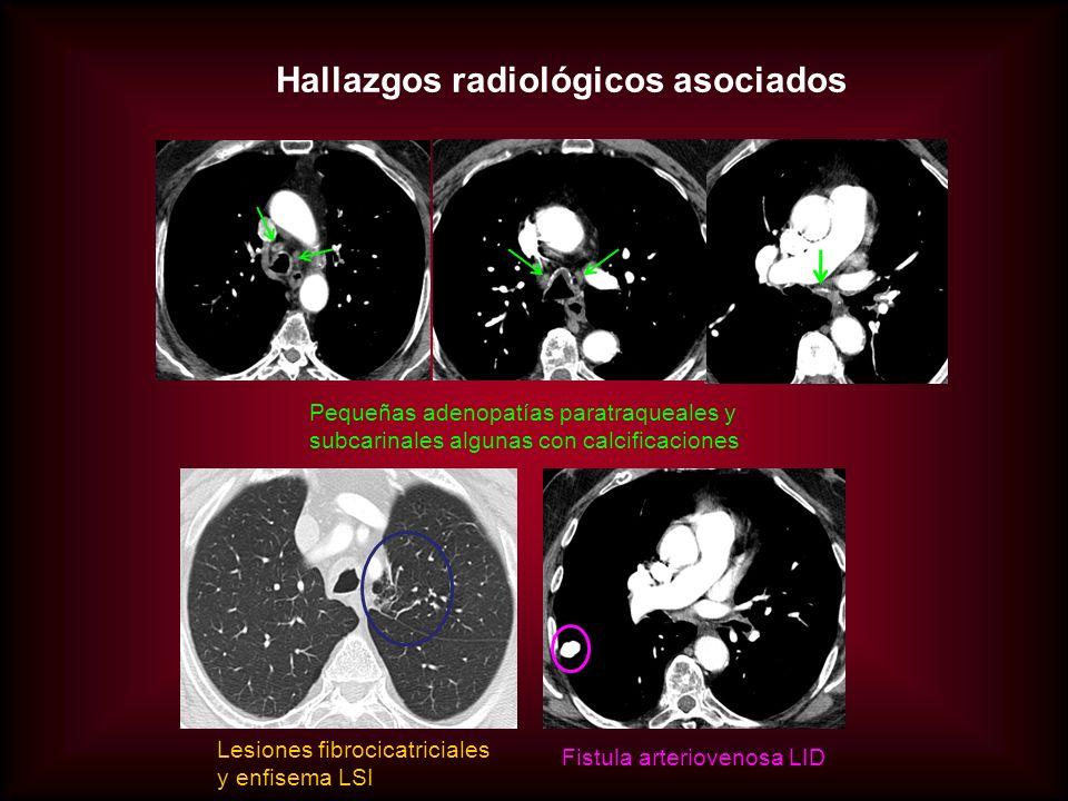 Hallazgos radiológicos asociados