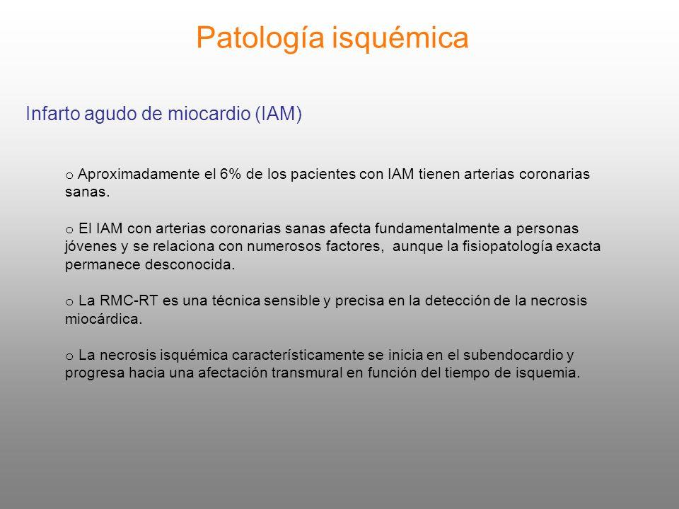 Patología isquémica Infarto agudo de miocardio (IAM)