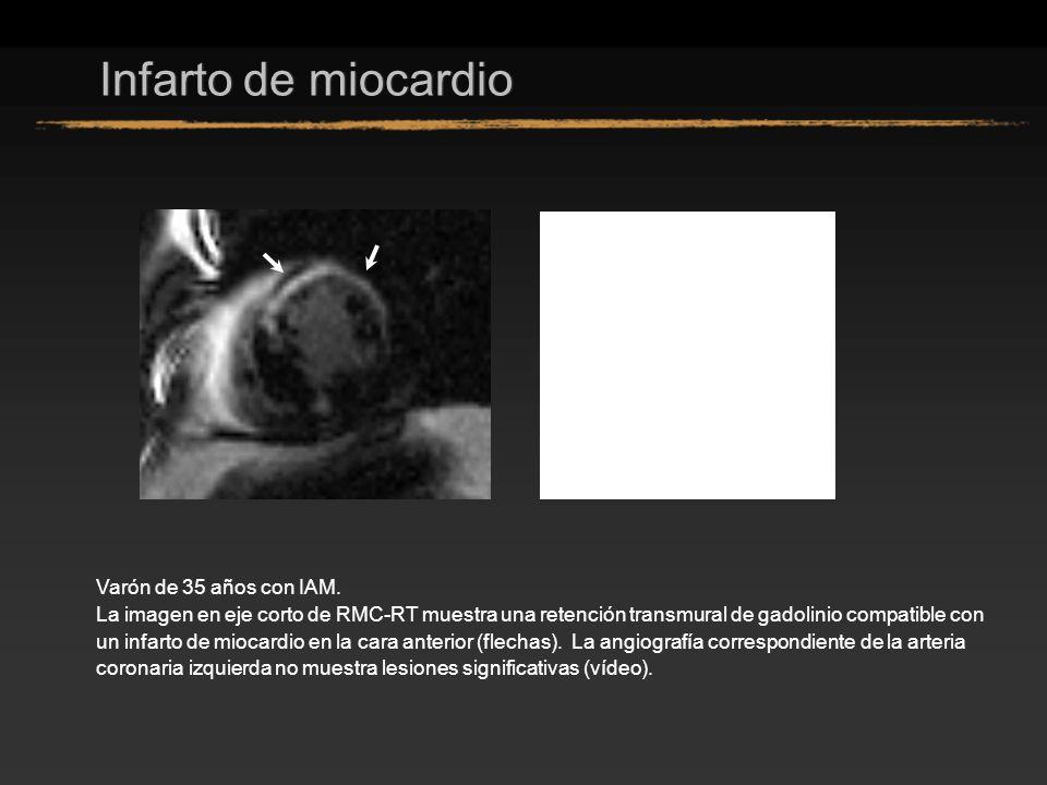 Infarto de miocardio Varón de 35 años con IAM.