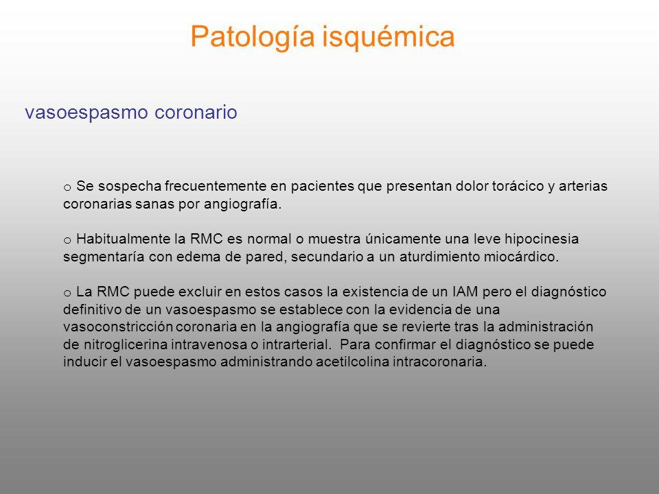 Patología isquémica vasoespasmo coronario