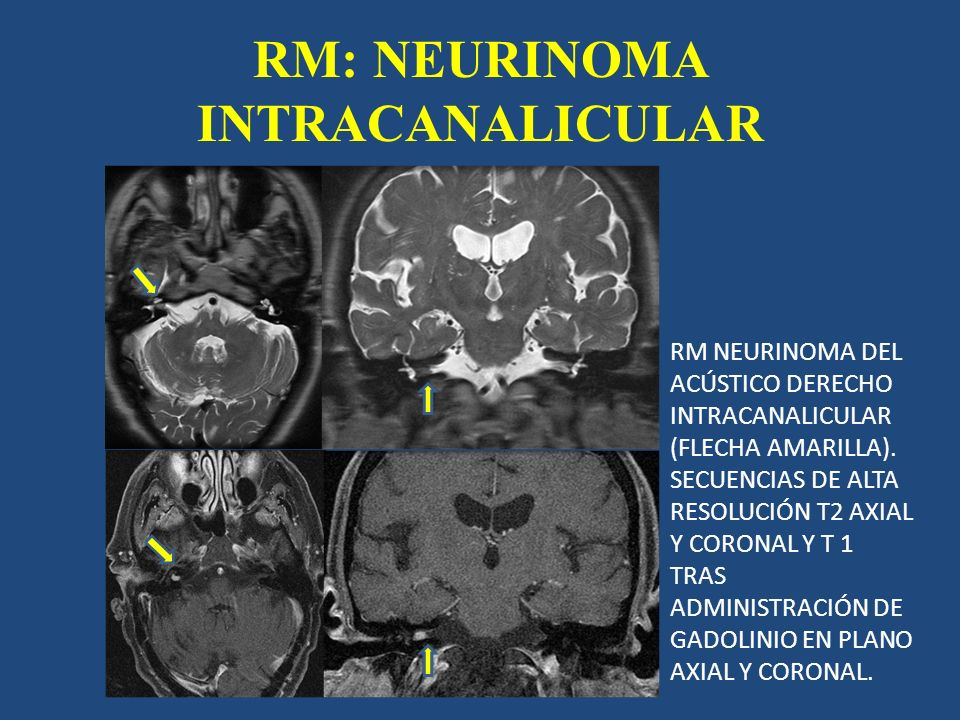 RM: NEURINOMA INTRACANALICULAR