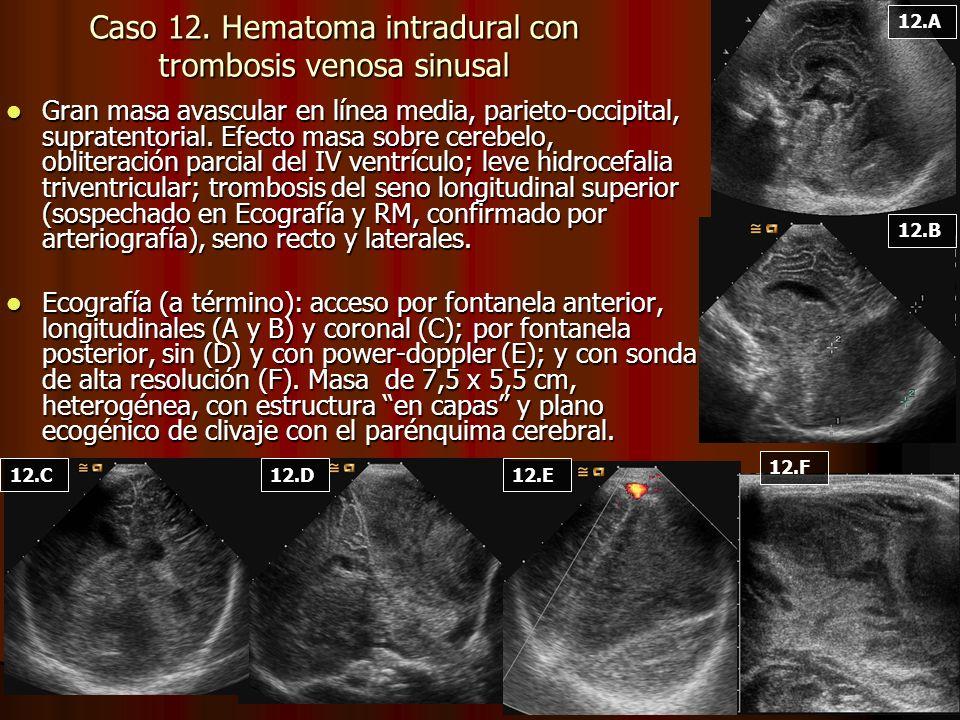 Caso 12. Hematoma intradural con trombosis venosa sinusal