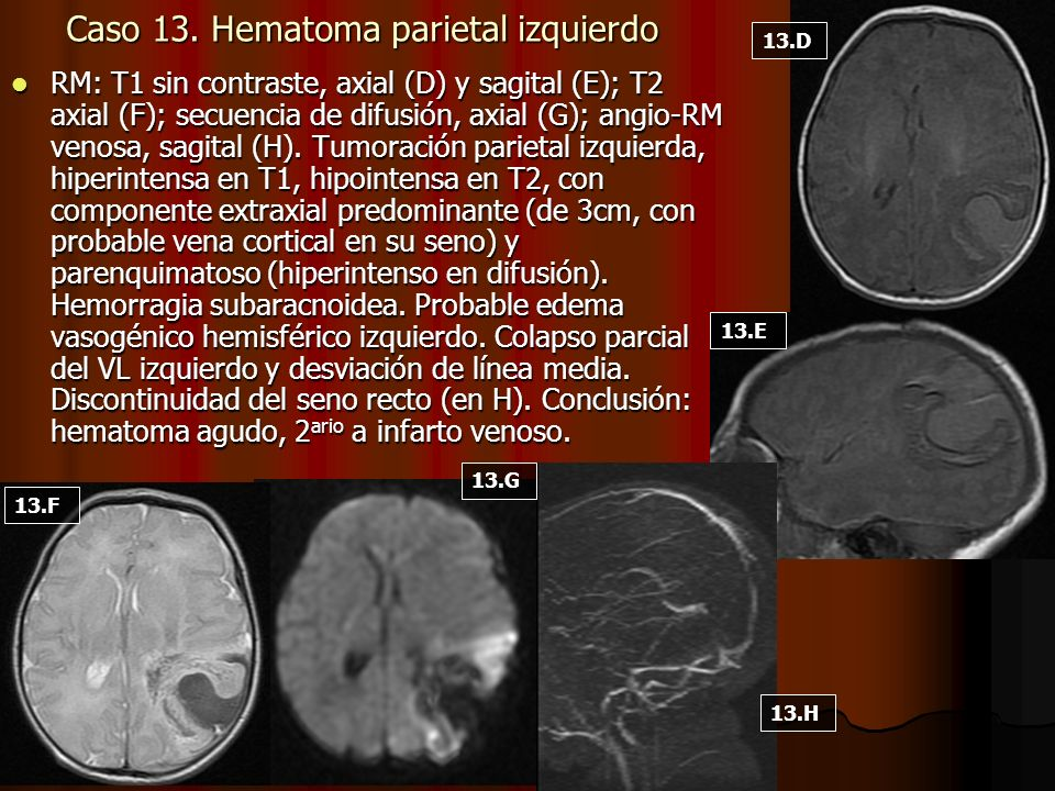 Caso 13. Hematoma parietal izquierdo