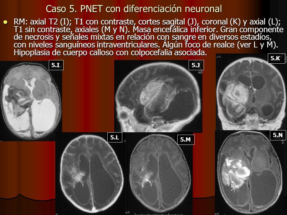 Caso 5. PNET con diferenciación neuronal