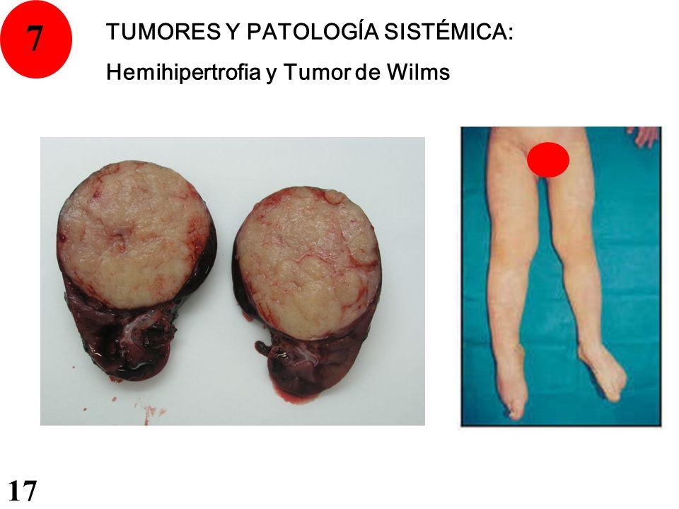 7 TUMORES Y PATOLOGÍA SISTÉMICA: Hemihipertrofia y Tumor de Wilms 17