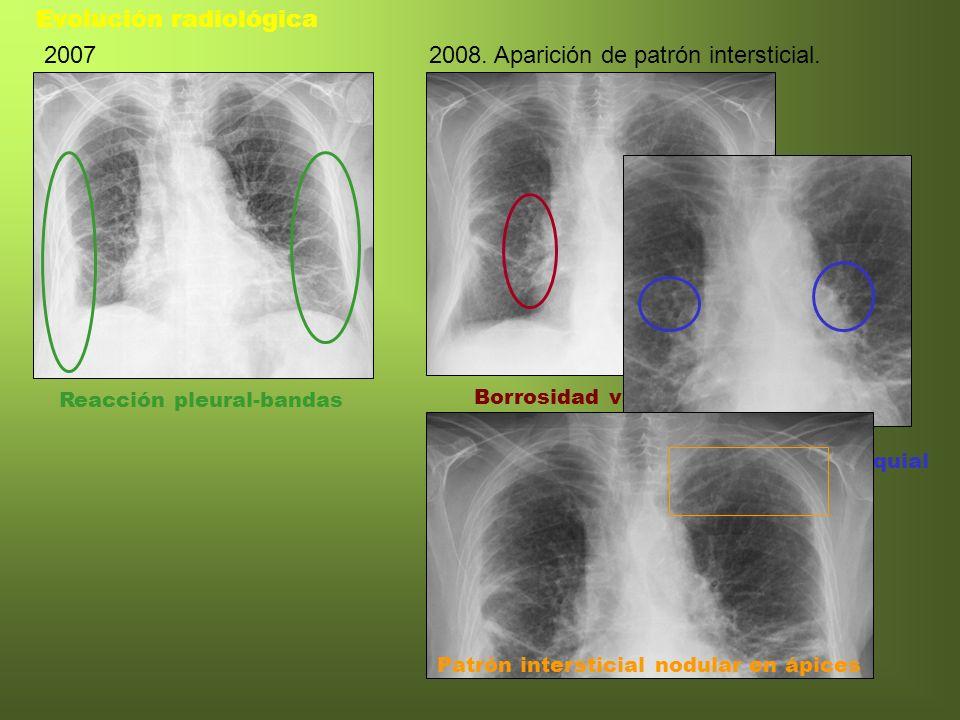 Evolución radiológica 2007 2008. Aparición de patrón intersticial.