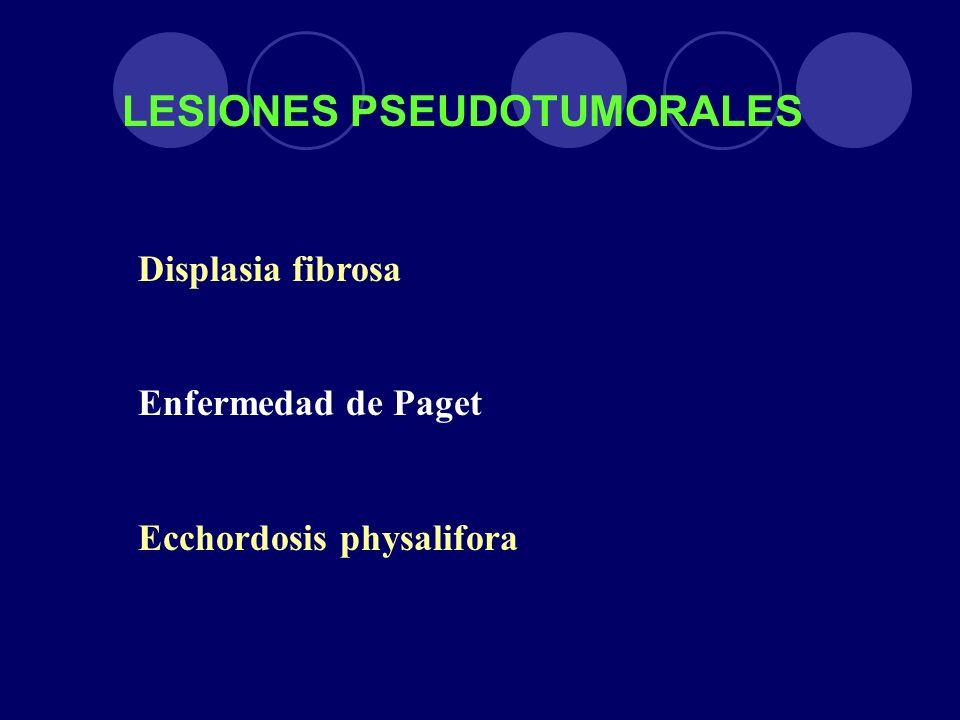 LESIONES PSEUDOTUMORALES