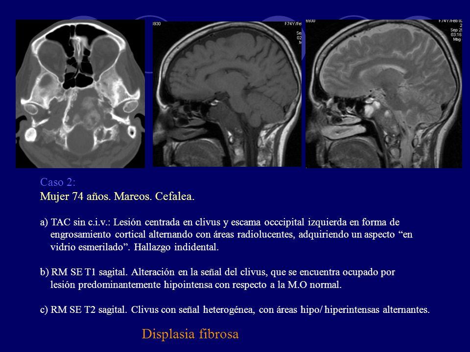 Displasia fibrosa Caso 2: Mujer 74 años. Mareos. Cefalea.