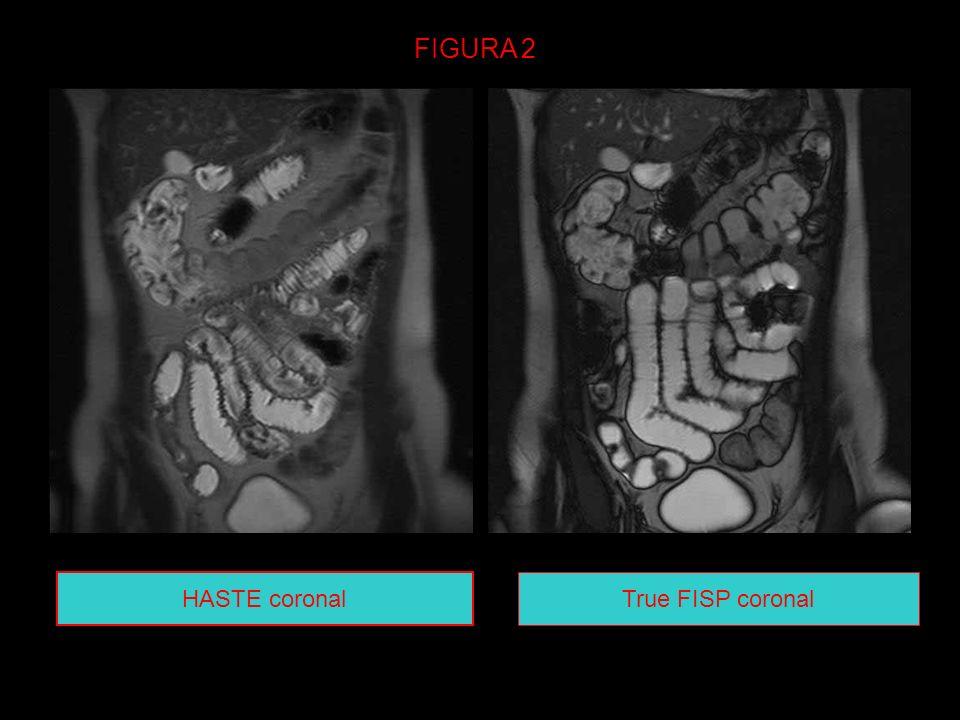 FIGURA 2 HASTE coronal True FISP coronal