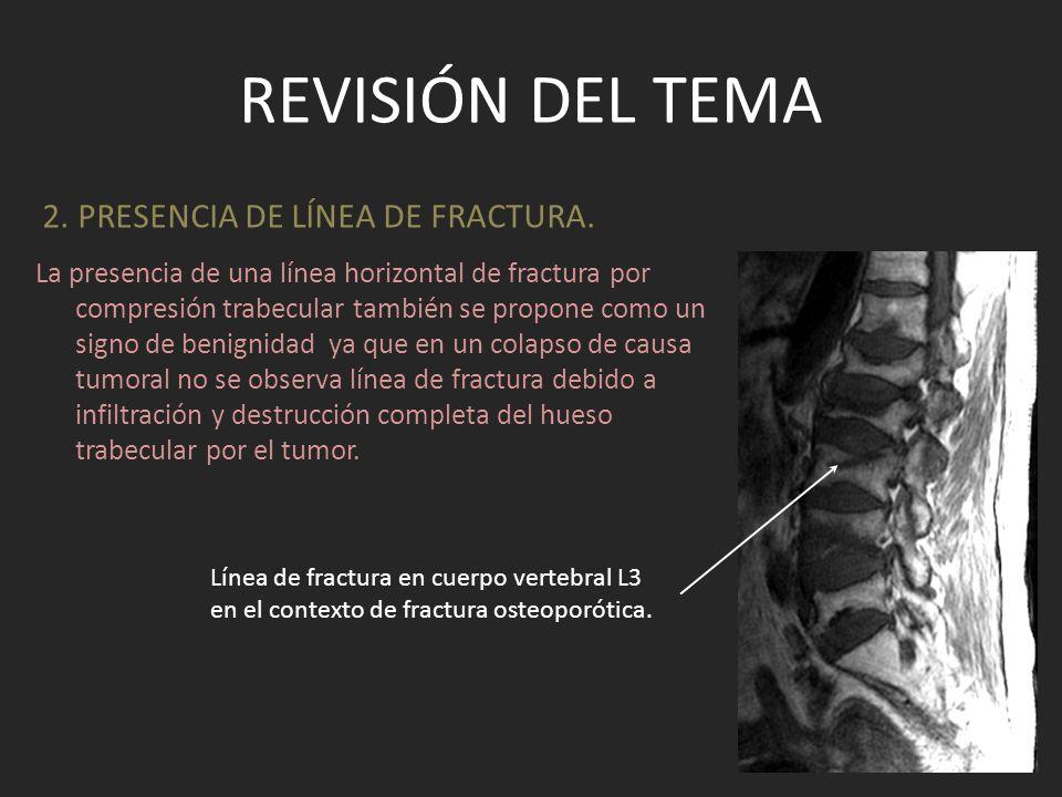 Revisión del tema 2. PRESENCIA DE LÍNEA DE FRACTURA.