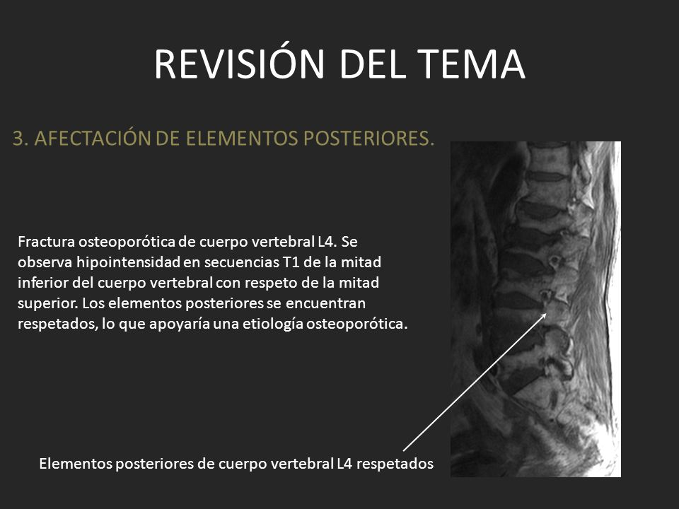 Revisión del tema 3. AFECTACIÓN DE ELEMENTOS POSTERIORES.
