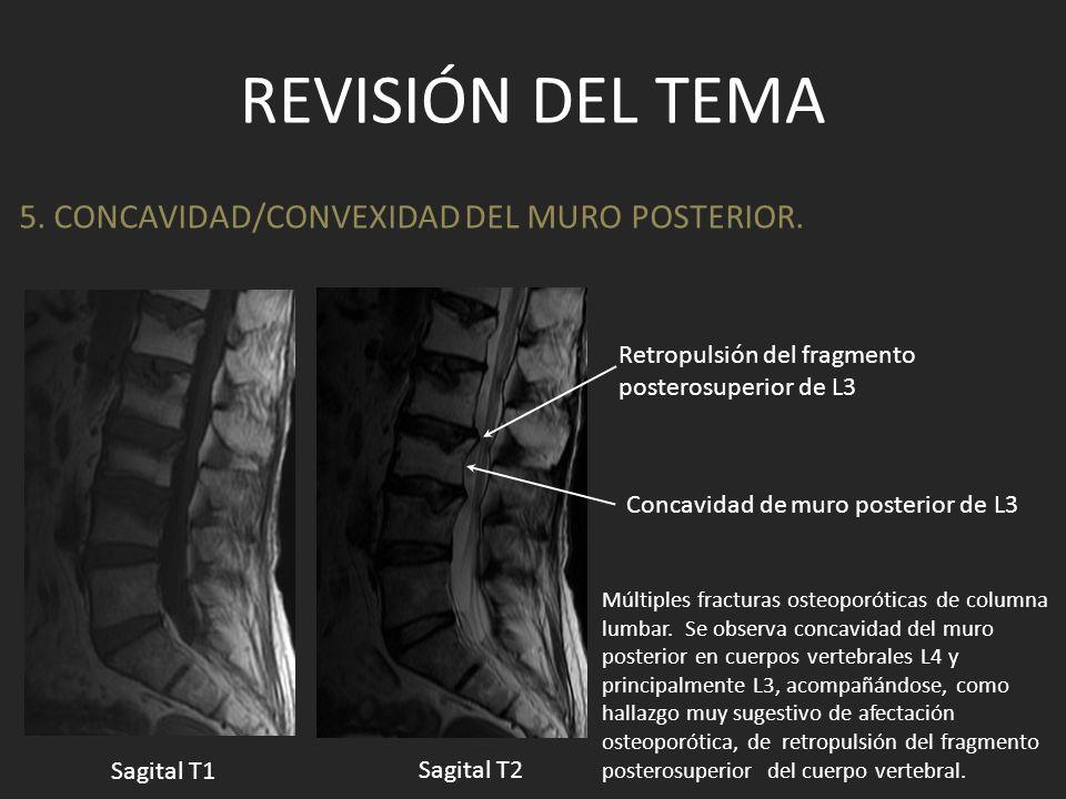 Revisión del tema 5. CONCAVIDAD/CONVEXIDAD DEL MURO POSTERIOR.