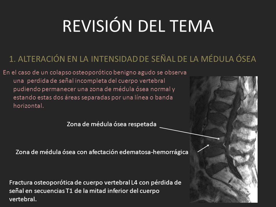 1. ALTERACIÓN EN LA INTENSIDAD DE SEÑAL DE LA MÉDULA ÓSEA