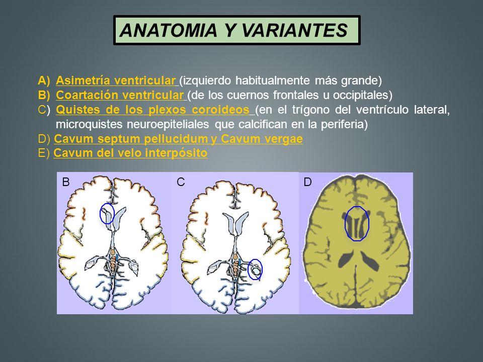 ANATOMIA Y VARIANTES Asimetría ventricular (izquierdo habitualmente más grande) Coartación ventricular (de los cuernos frontales u occipitales)