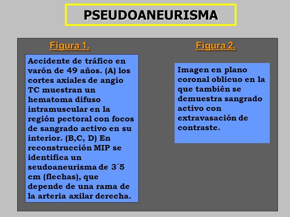 PSEUDOANEURISMA Figura 1. Figura 2.