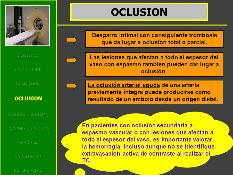 O OBJETIVOS. BACKGROUND. HALLAZGOS. OCLUSION. PSEUDOANEURISMA. SANGRADO ACTIVO. ERRORES. CONCLUSION.