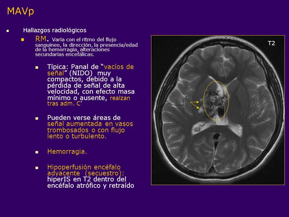 MAVpHallazgos radiológicos.