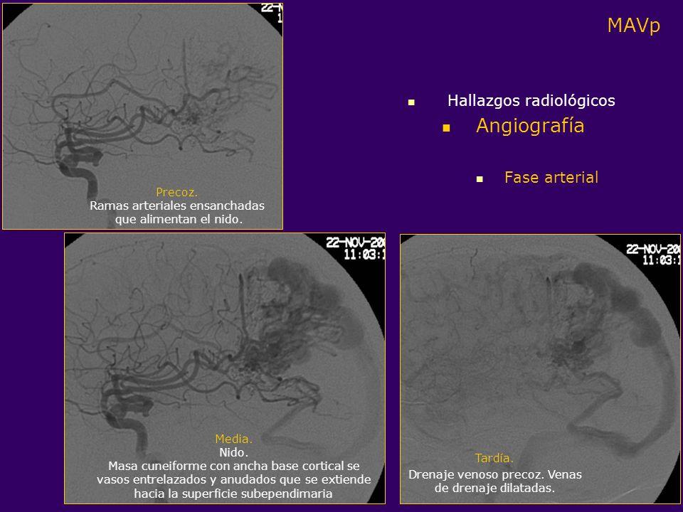 MAVp Angiografía Hallazgos radiológicos Fase arterial Precoz.