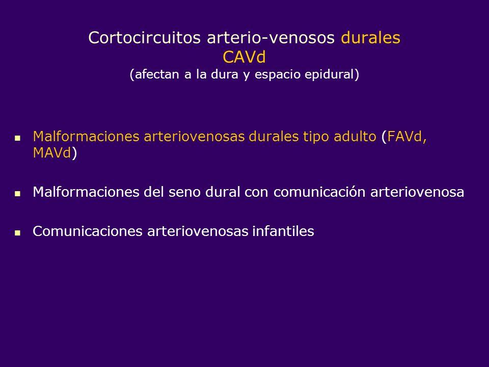Cortocircuitos arterio-venosos durales CAVd (afectan a la dura y espacio epidural)