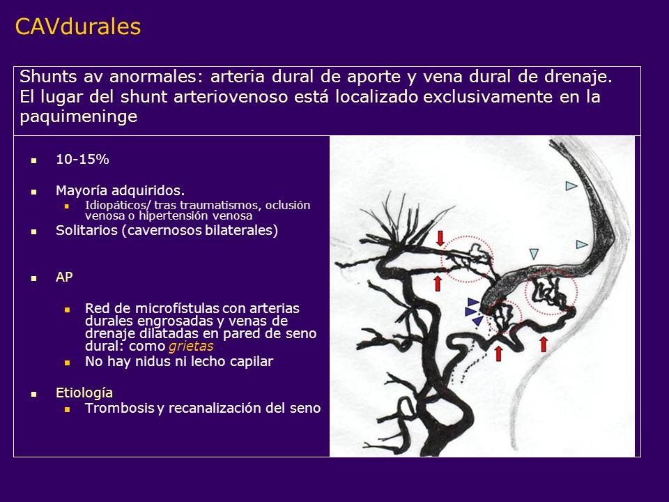 CAVdurales