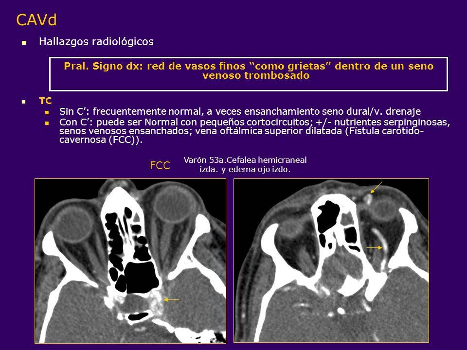 Varón 53a.Cefalea hemicraneal izda. y edema ojo izdo.