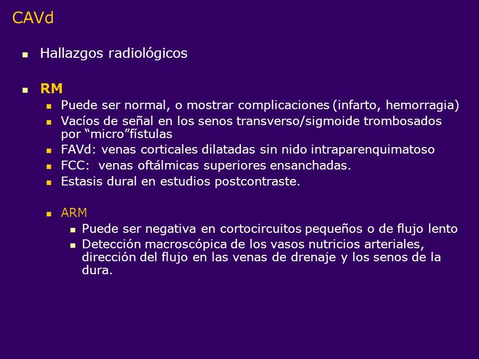CAVd Hallazgos radiológicos RM