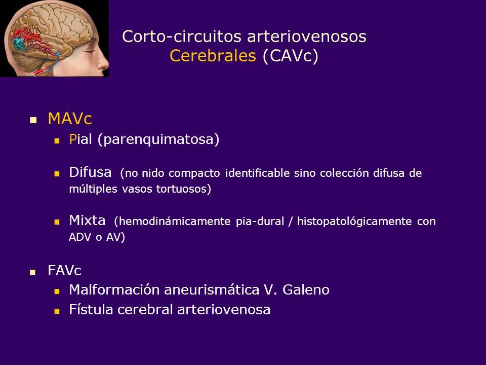 Corto-circuitos arteriovenosos Cerebrales (CAVc)