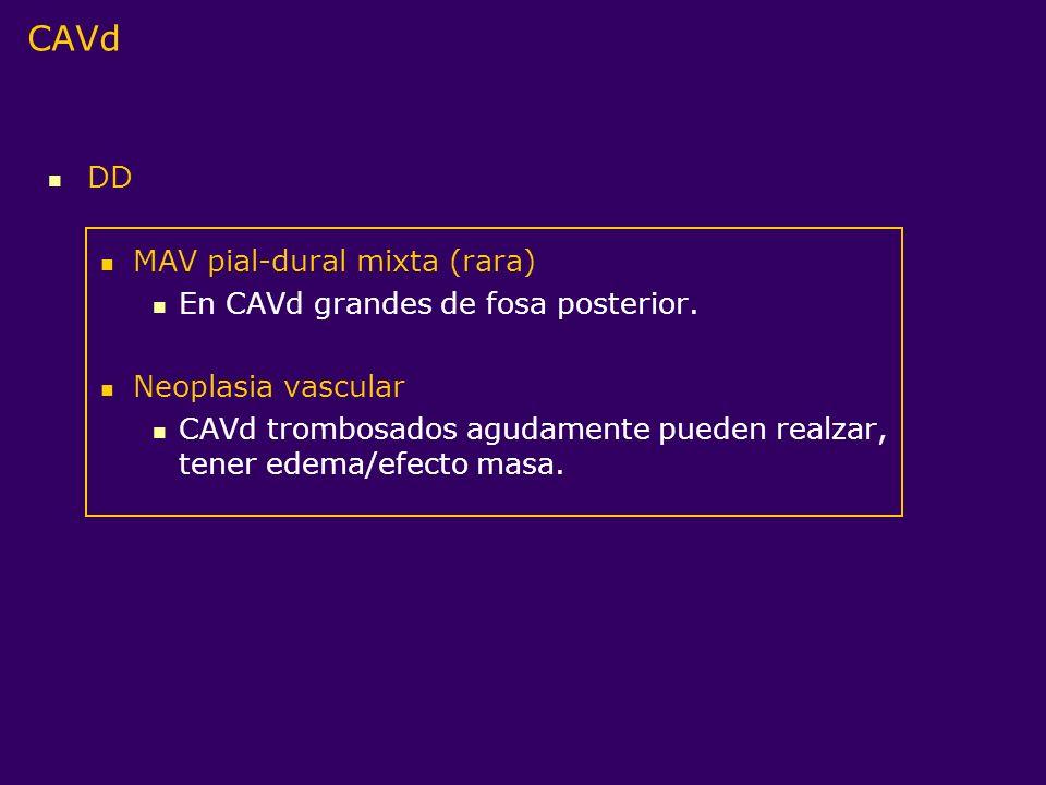 CAVd DD MAV pial-dural mixta (rara) En CAVd grandes de fosa posterior.