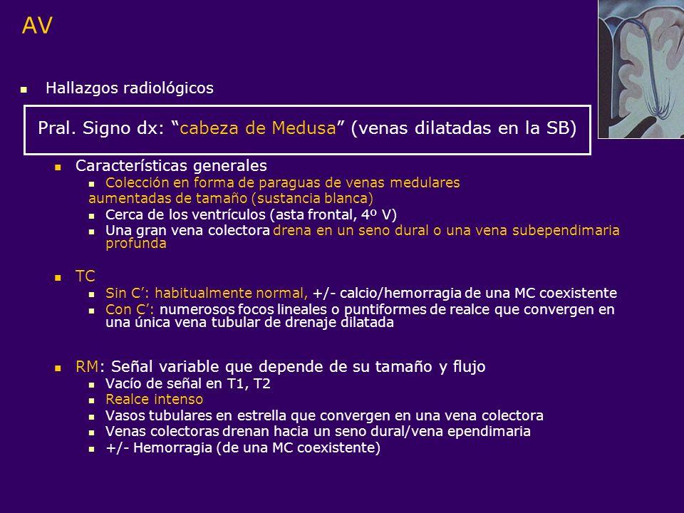 AV Pral. Signo dx: cabeza de Medusa (venas dilatadas en la SB)