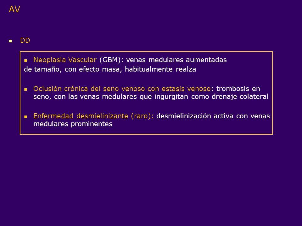 AV DD Neoplasia Vascular (GBM): venas medulares aumentadas