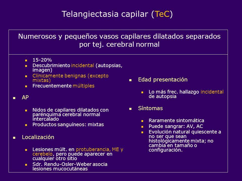Telangiectasia capilar (TeC)