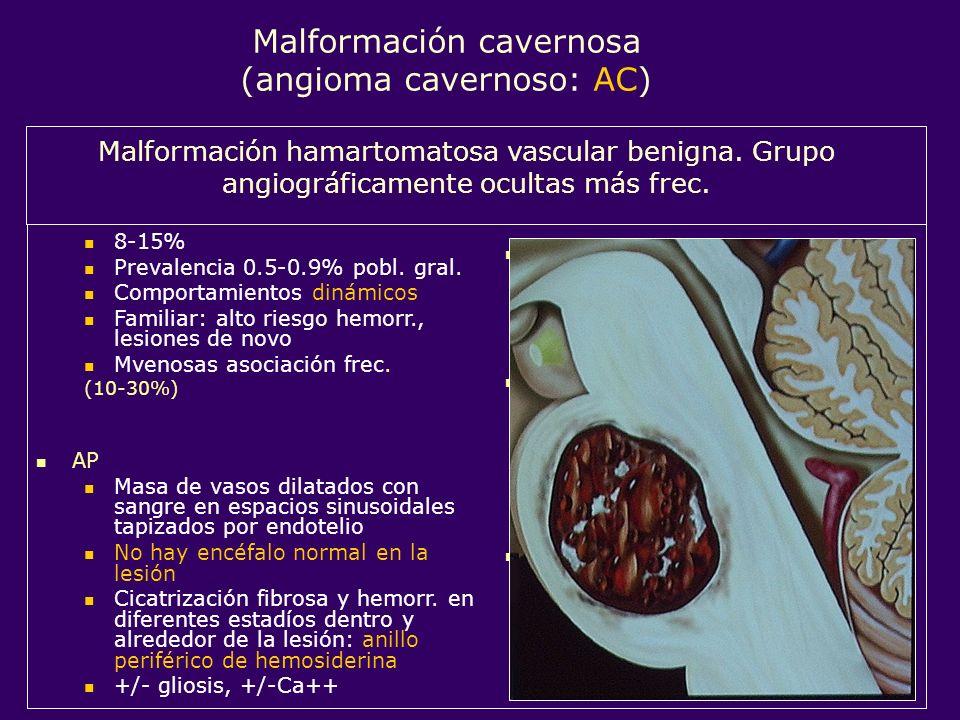 Malformación cavernosa (angioma cavernoso: AC)