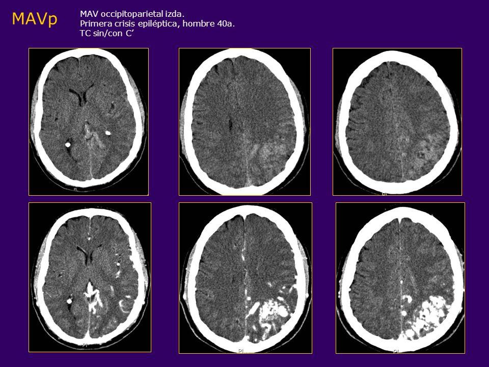 MAVp MAV occipitoparietal izda. Primera crisis epiléptica, hombre 40a.