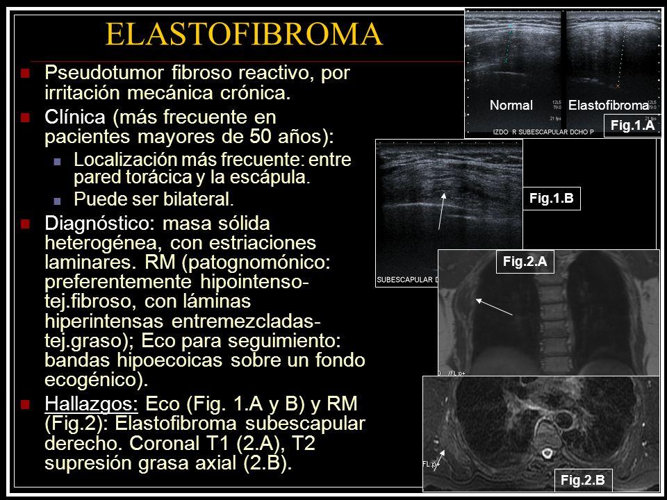 ELASTOFIBROMA Pseudotumor fibroso reactivo, por irritación mecánica crónica. Clínica (más frecuente en pacientes mayores de 50 años):