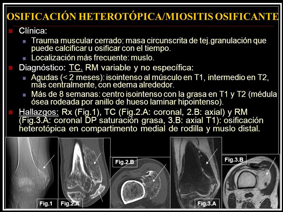 OSIFICACIÓN HETEROTÓPICA/MIOSITIS OSIFICANTE