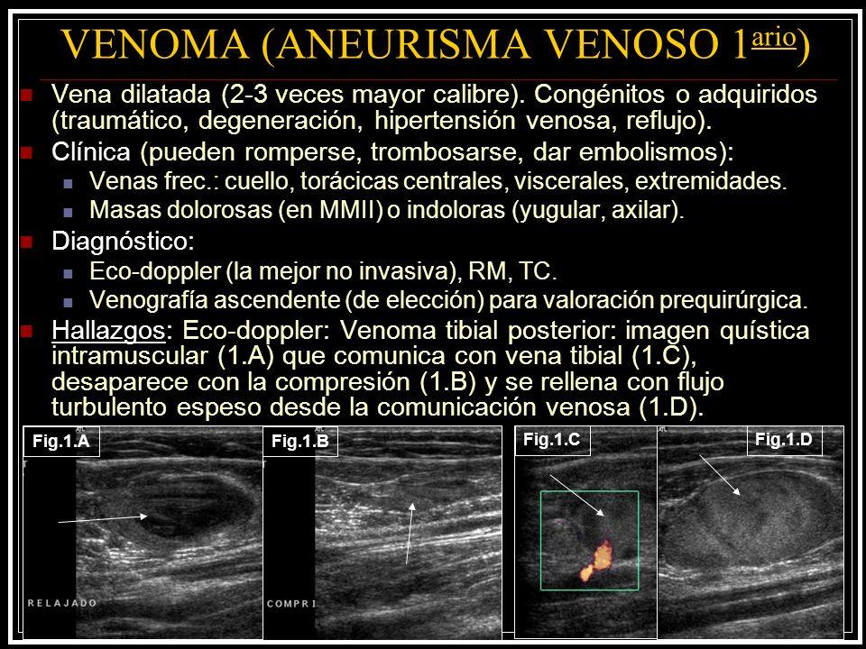 VENOMA (ANEURISMA VENOSO 1ario)