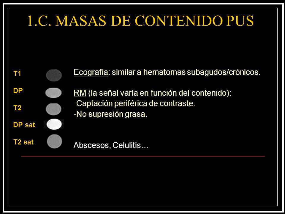 1.C. MASAS DE CONTENIDO PUS