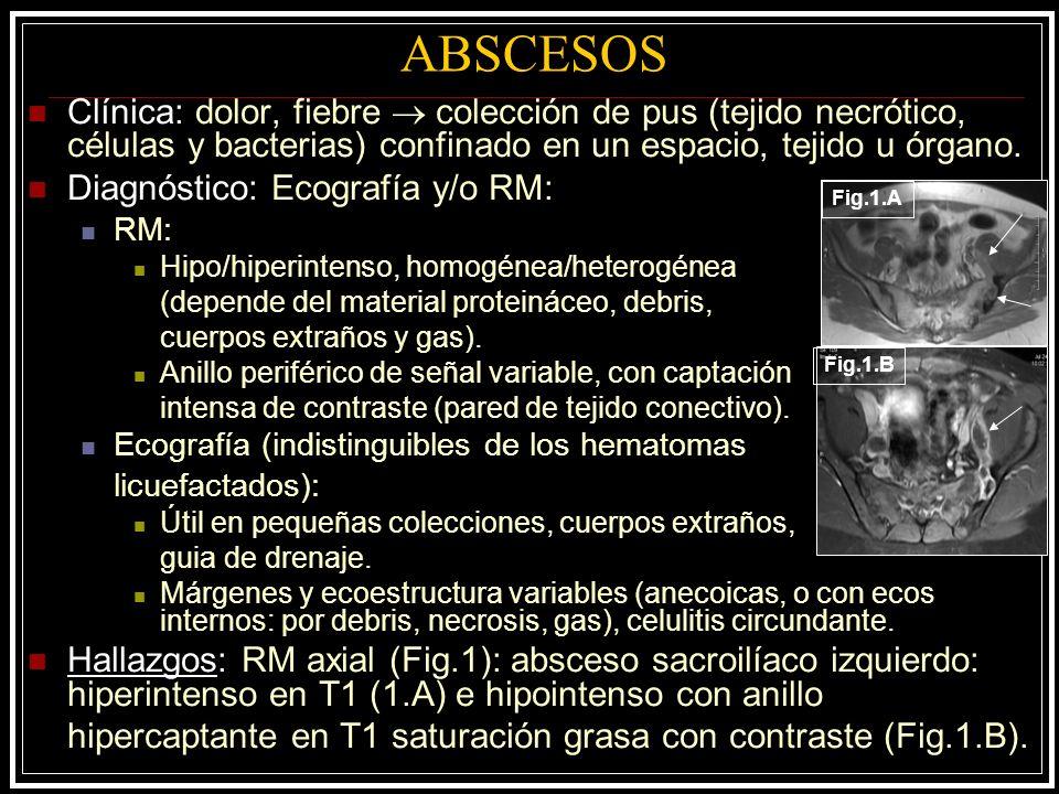 ABSCESOS Clínica: dolor, fiebre  colección de pus (tejido necrótico, células y bacterias) confinado en un espacio, tejido u órgano.