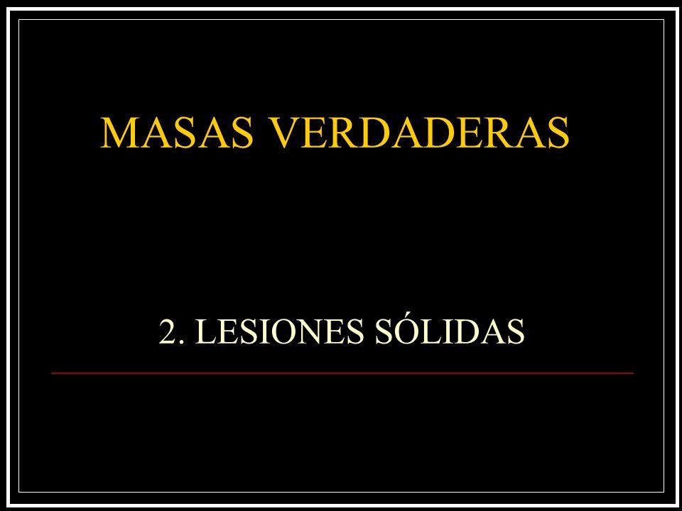 MASAS VERDADERAS 2. LESIONES SÓLIDAS