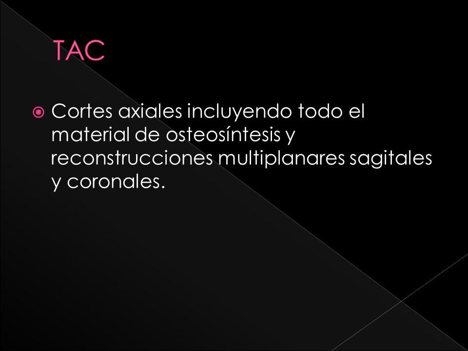 TAC Cortes axiales incluyendo todo el material de osteosíntesis y reconstrucciones multiplanares sagitales y coronales.