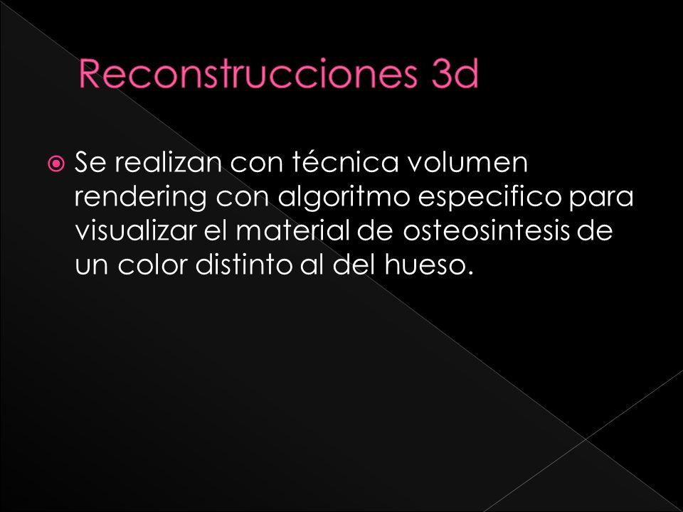 Reconstrucciones 3d