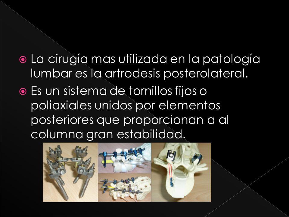 La cirugía mas utilizada en la patología lumbar es la artrodesis posterolateral.