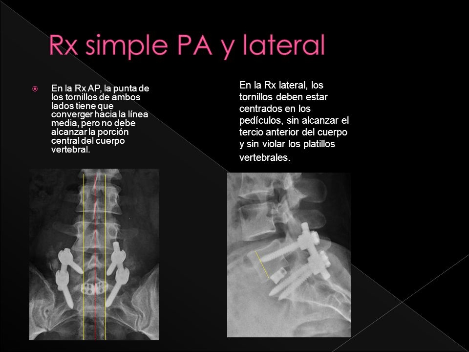 Rx simple PA y lateral