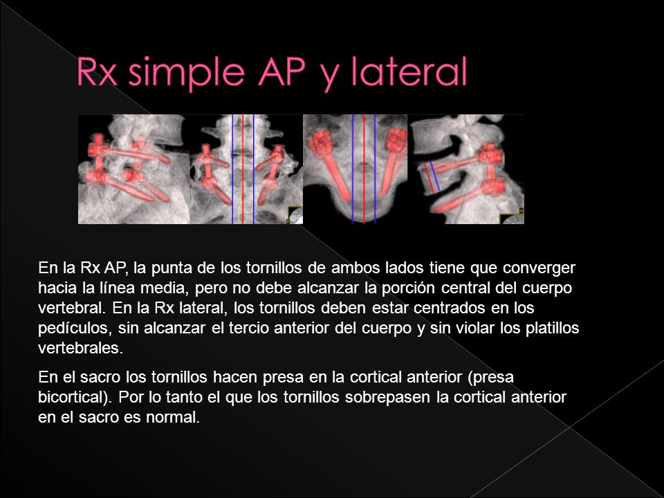 Rx simple AP y lateral