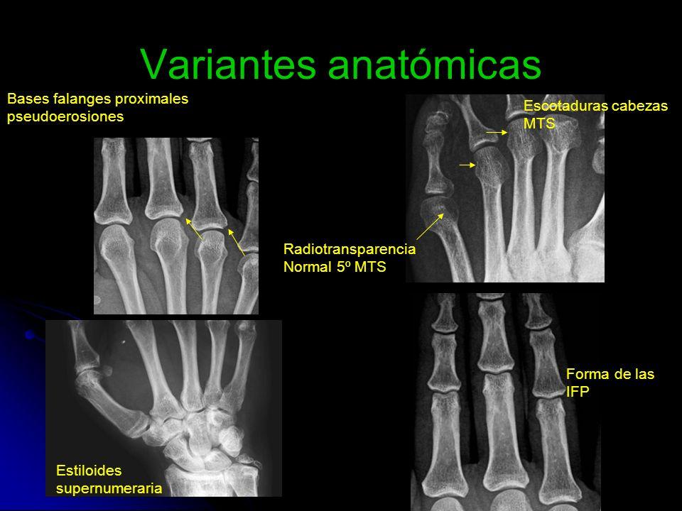Variantes anatómicas Bases falanges proximales pseudoerosiones