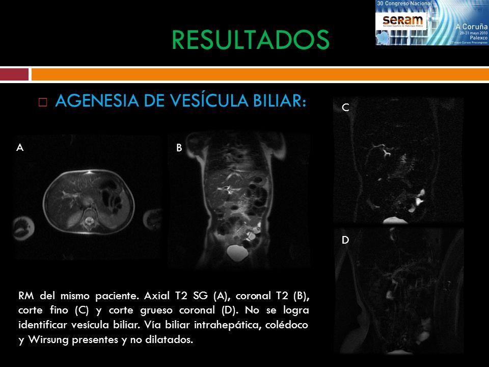 RESULTADOS AGENESIA DE VESÍCULA BILIAR: C A B D