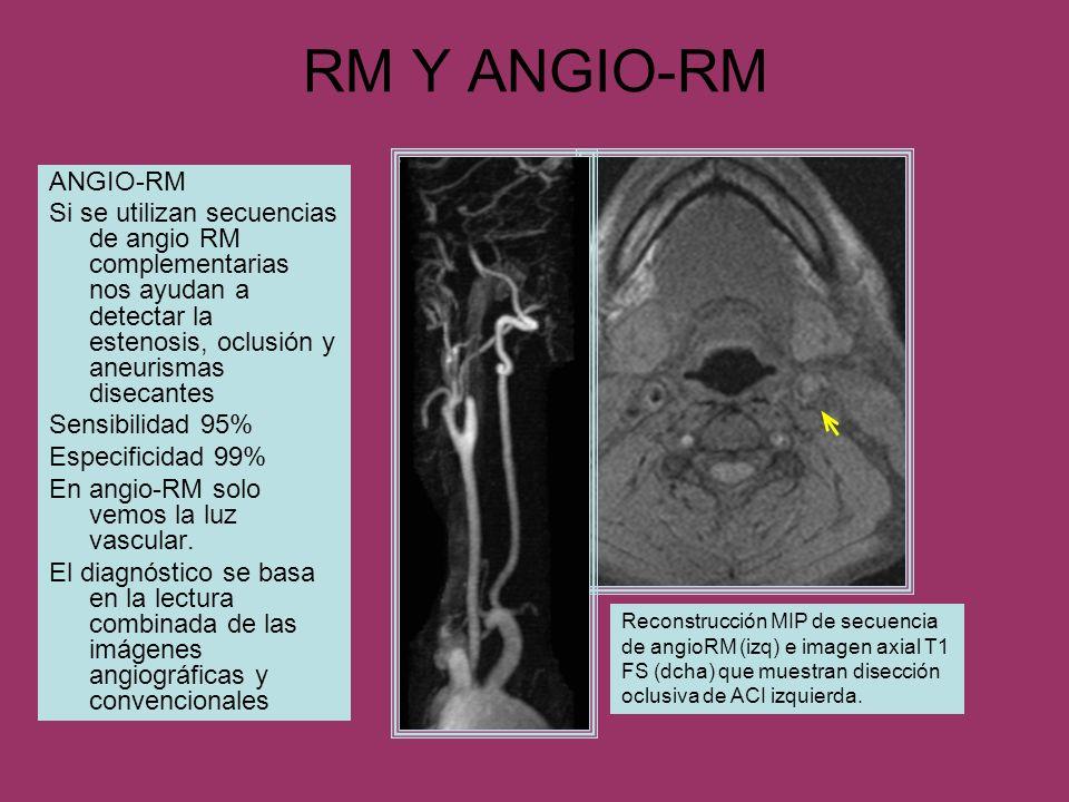RM Y ANGIO-RM ANGIO-RM. Si se utilizan secuencias de angio RM complementarias nos ayudan a detectar la estenosis, oclusión y aneurismas disecantes.